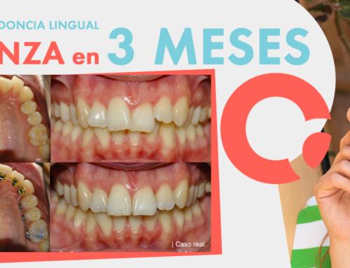 Caso real enOrtodoncia Lingual de la Dra. Ana González Blanco, Clínica de Ortodoncia Lingual en Madrid y Oviedo.