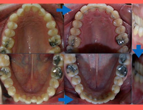 Ortodoncia lingual invisible en madrid y oviedo, otro caso resuelto.